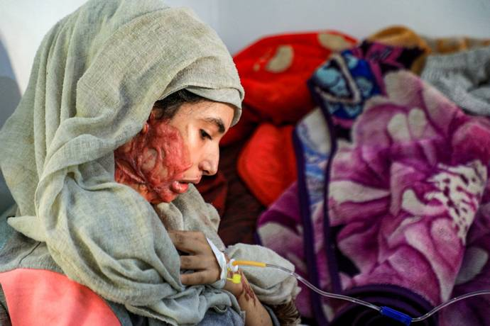 Resultado de imagen para joven obligada a casarse a los 12 años es atacada con ácido